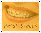จัดฟัน 6